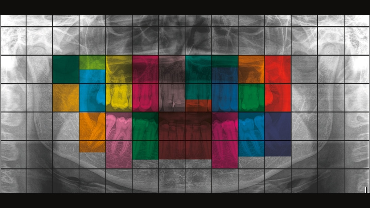 Thiết bị chuẩn đoán hình ảnh Orthophos SL 3D