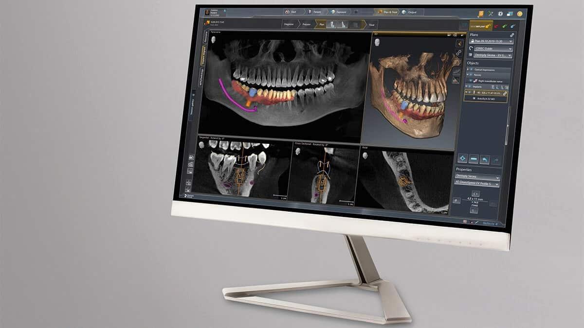 Thiết bị chẩn đoán hình ảnh Orthophos SL 3D