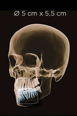 thiết-bị-chẩn-đoán-hình-ảnh-orthophos-sl-3d-volume-01