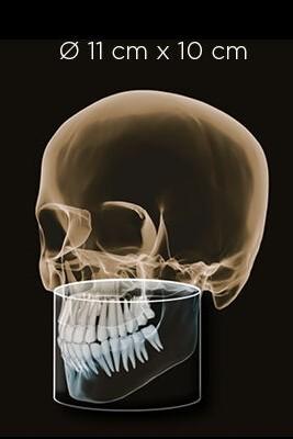 thiết-bị-chẩn-đoán-hình-ảnh-orthophos-sl-3d-volume-03