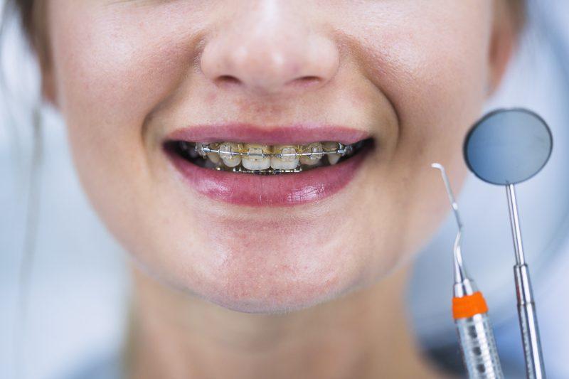 trường hợp không nên tẩy trắng răng tại nhà PhilipsZoom Nitewhite