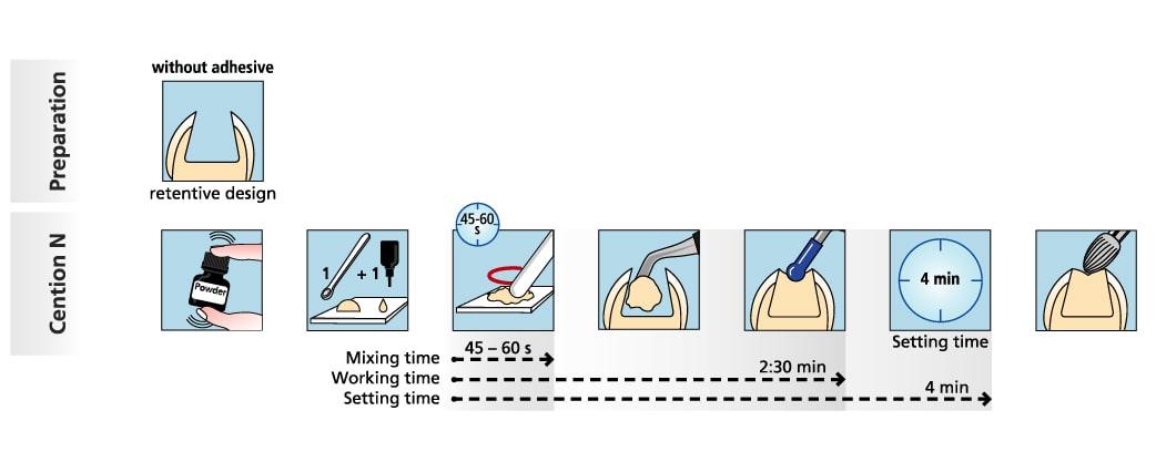 Quy trình sử dụng cention N