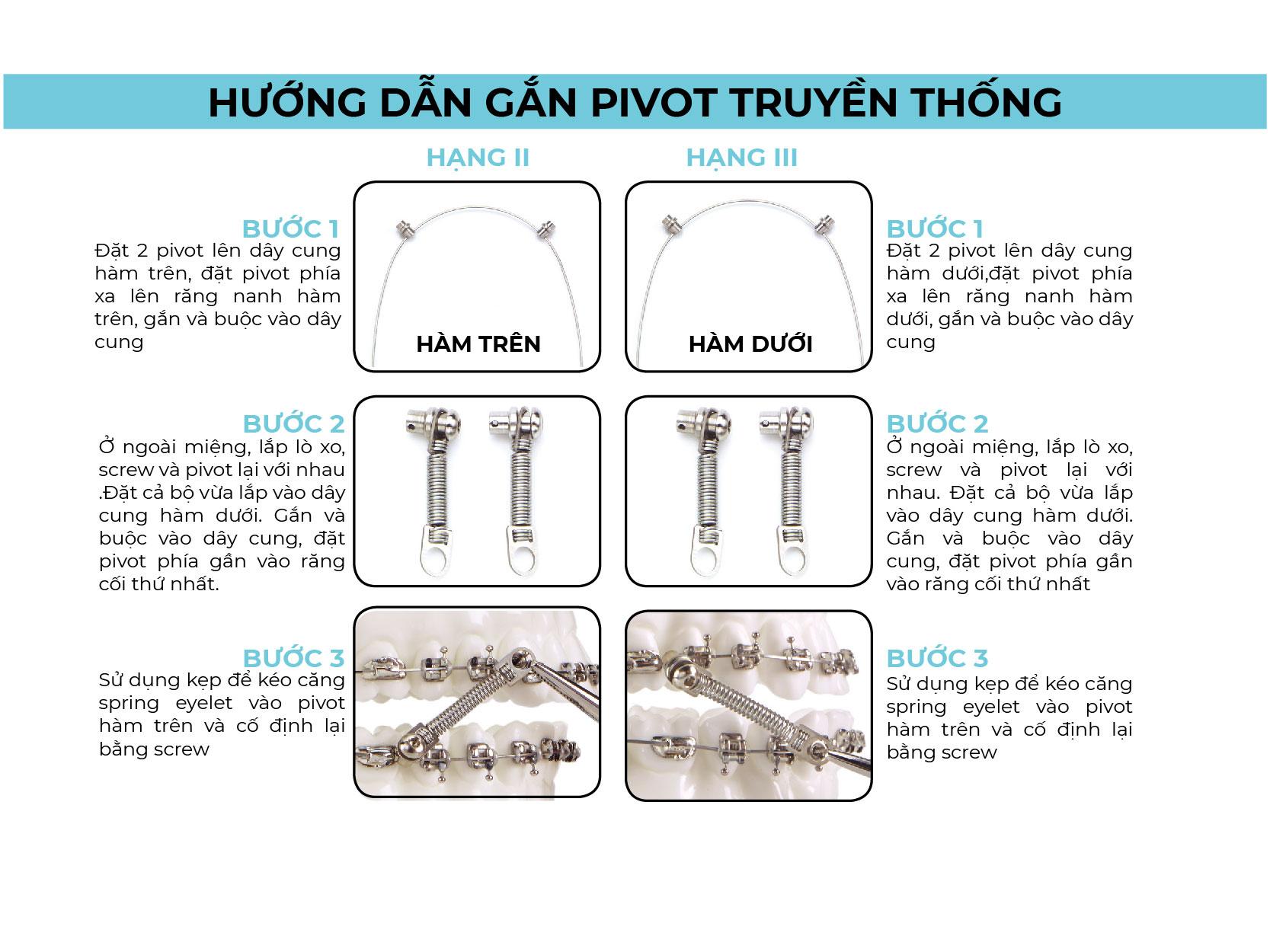 Gắn pivot truyền thống giải pháp chỉnh nha CS4