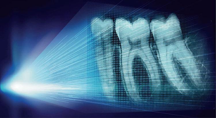 Máy X-quang kĩ thuật số PSPIX2-1