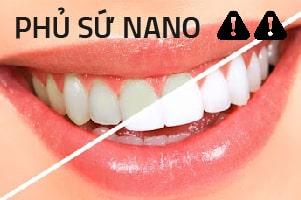 sự thật về phủ răng sứ nano