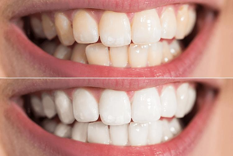 Tẩy tráng răng có hại không