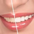 Tẩy trắng răng có hại không? Những kiến thức cơ bản về tẩy trắng