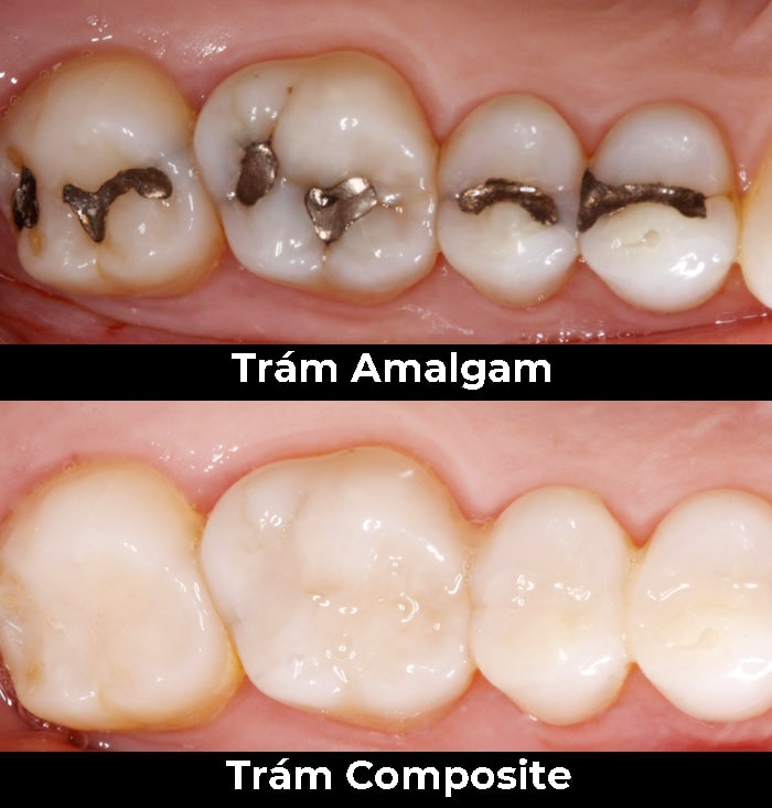 Amalgam nguy hiểm thế nào? Giải pháp thay thế Amalgam trong nha khoa