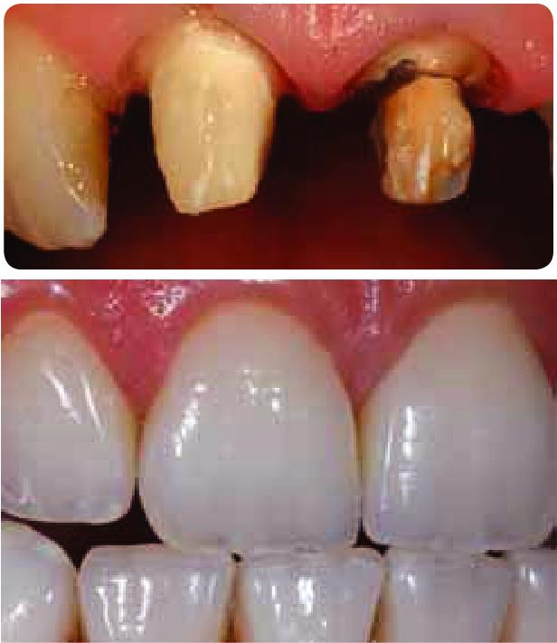 vật liệu sứ emax - phục hình bền chắc và thẩm mỹ như răng thật