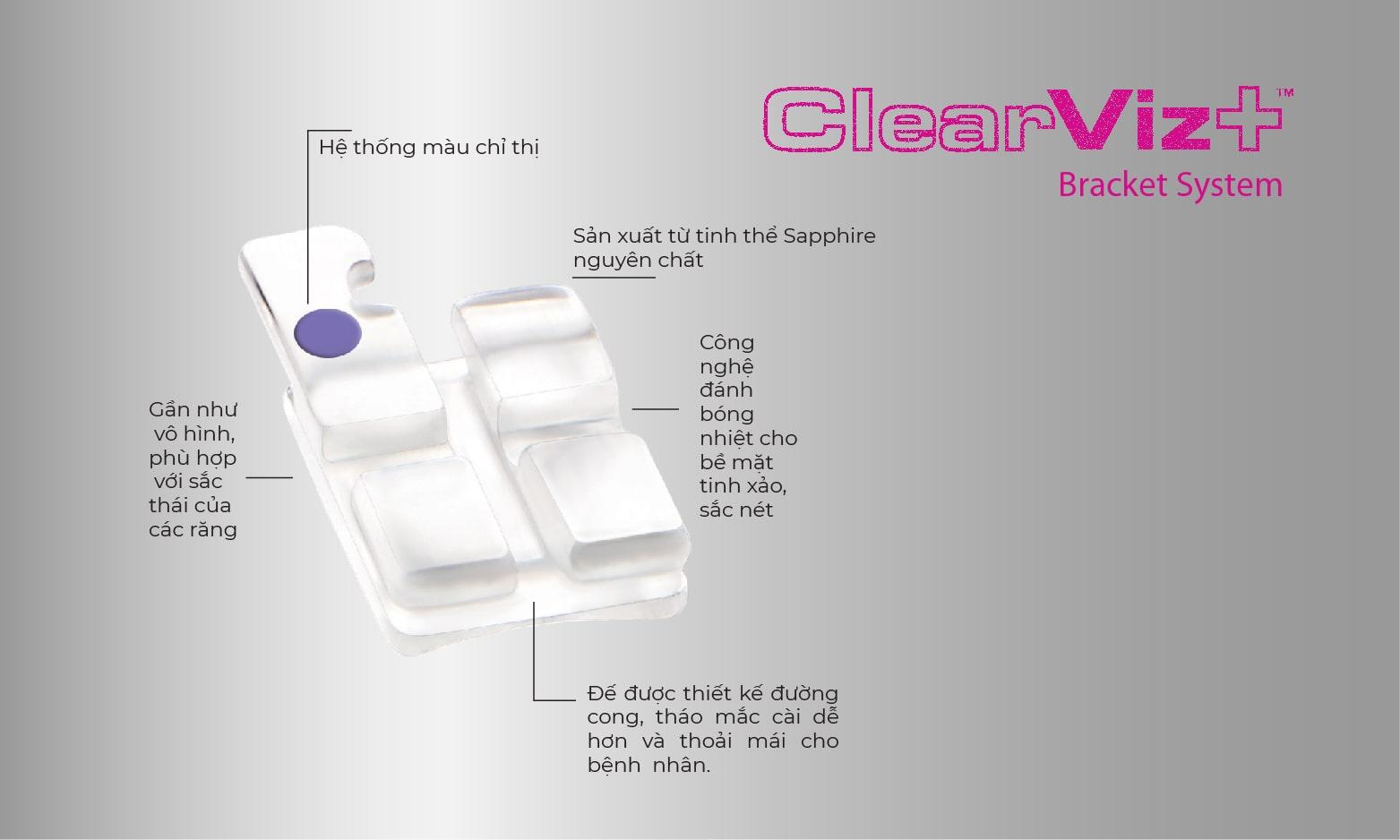Hệ thống mắc cài pha lê ClearViz