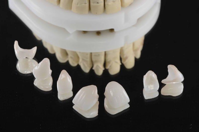 Răng sứ Emax Zirconia là gì? Ưu nhược điểm của sứ Zirconia