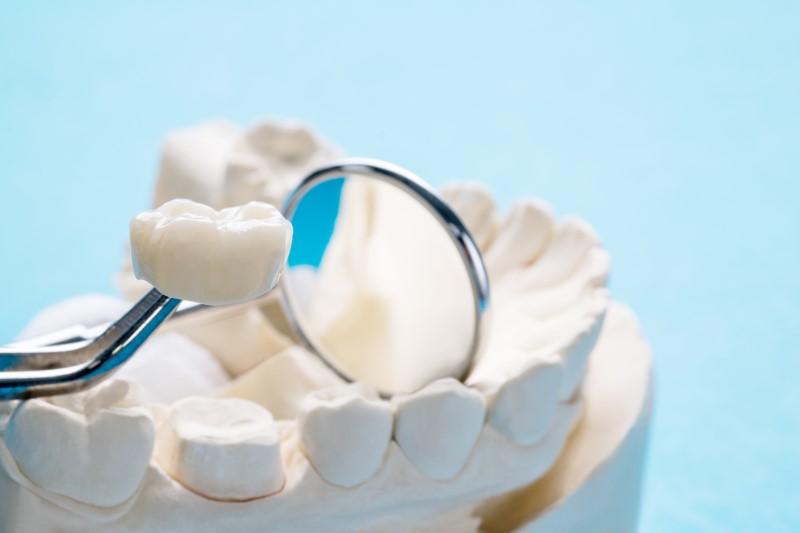 Tổng quan về các loại răng sứ. So sánh ưu nhược điểm từng loại