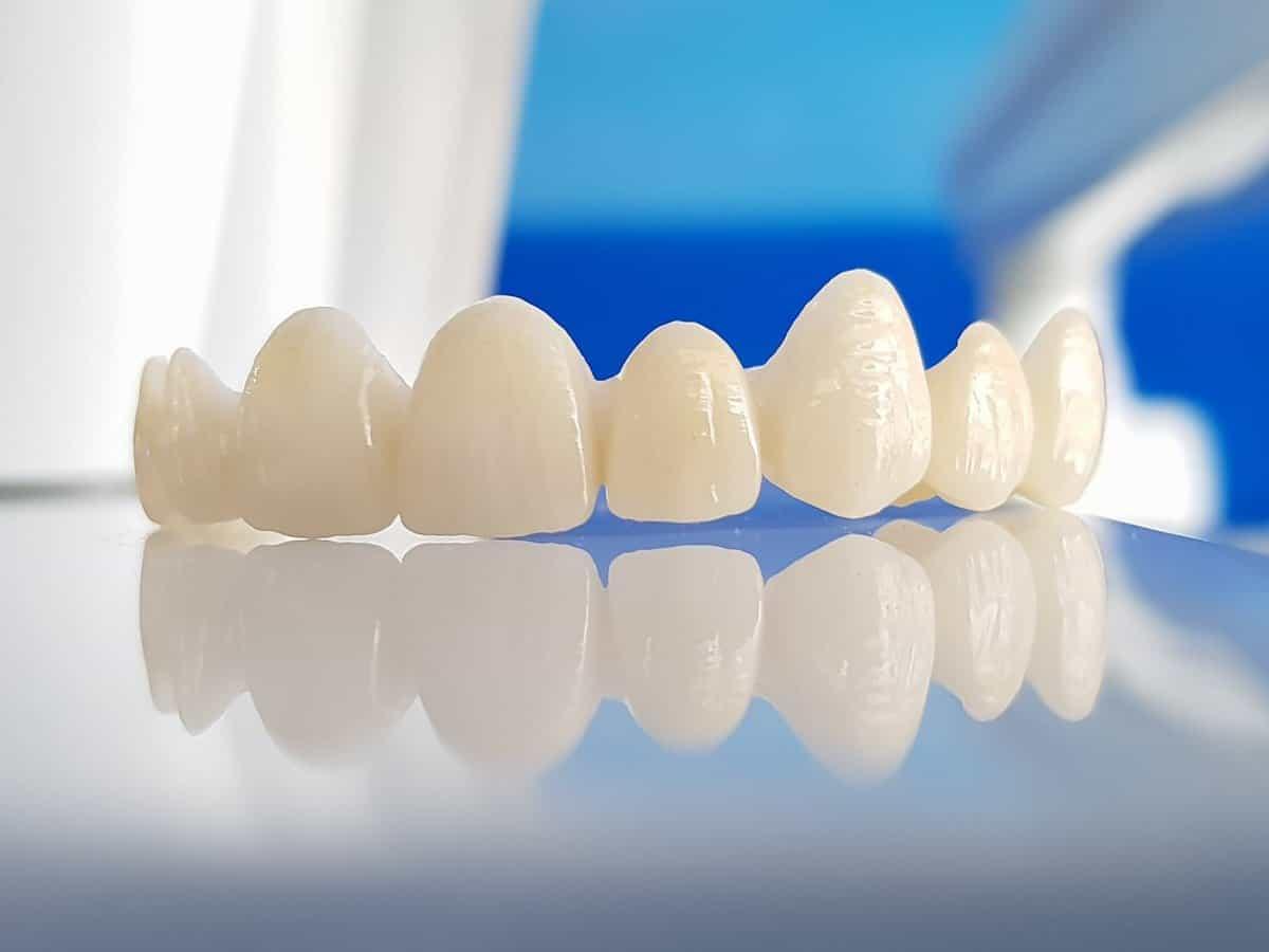 Răng sứ là gì? Dán răng sứ loại nào tốt?