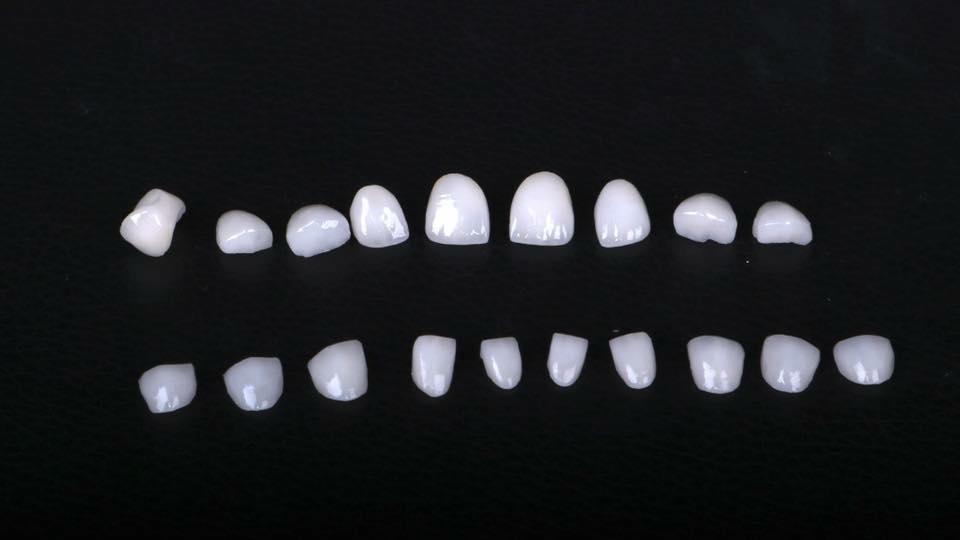 Răng sứ thuỷ tinh Emax Press