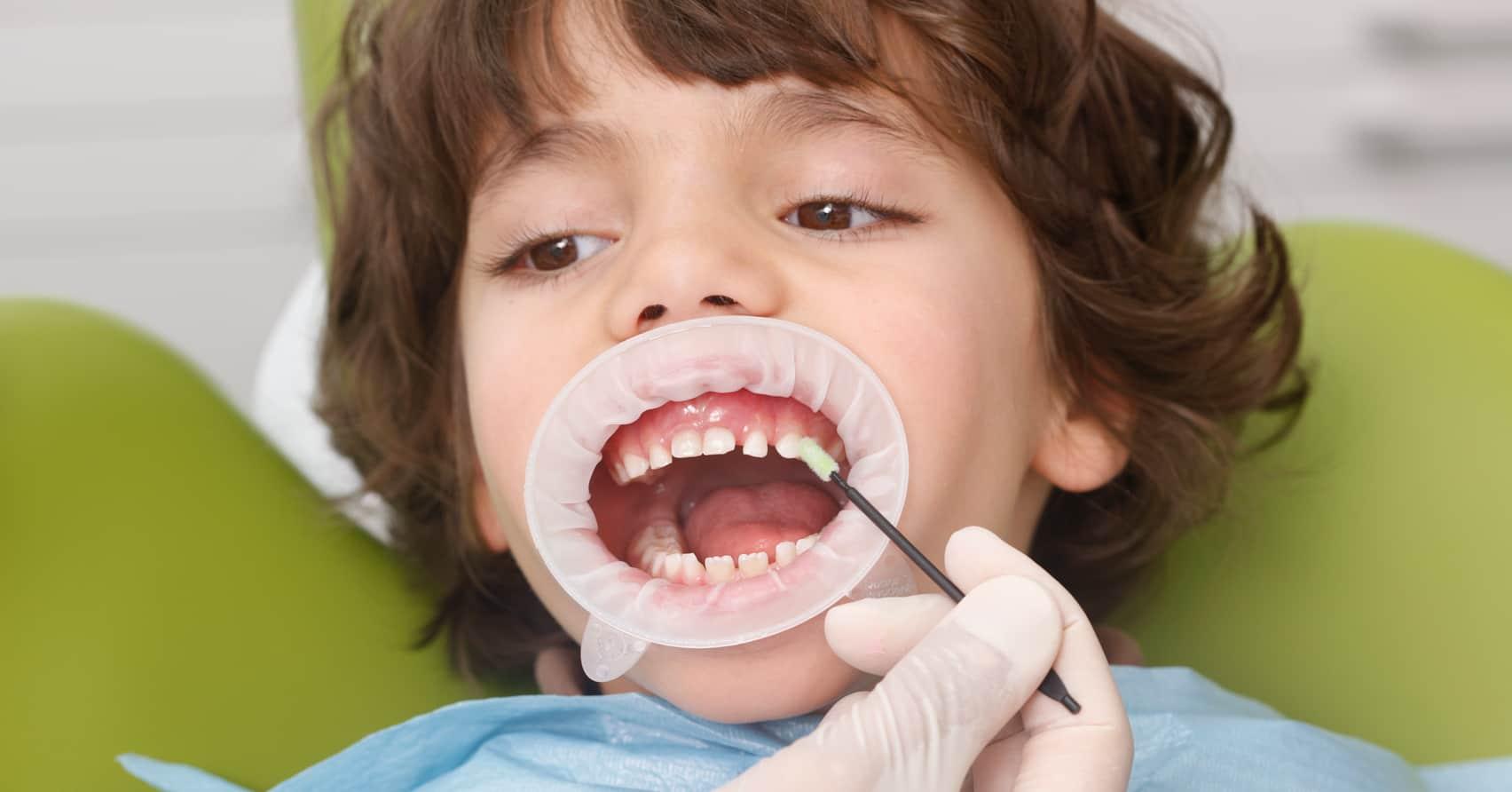 Ngừa sâu răng trẻ em với Vecni florua