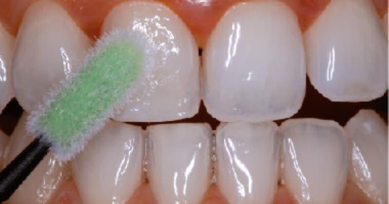 Ngừa sâu răng trẻ em bằng cách bôi Venci Florua