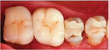 Hình 4: Phục hình bị hỏng ở khu vực răng sau đang rất cần sửa