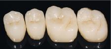 Hình 8: Mão nguyên khối sau khi đã được hoàn thiện, kết tinh và thêm đặc tính.