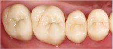 Hình 10: Kiểm tra mão răng vào năm 2012