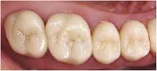 Hình 11: Tình trạng sau 10 năm (2017): Mão răng còn nguyên vẹn và không có dấu hiệu hư hỏng rõ rệt. Các cạnh mòn có thể thấy rõ, ví dụ: trên mũi phía gần-xa của răng trên bên trái 6.