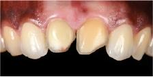 Hình 17: Kết quả là không đạt yêu cầu về mặt thẩm mỹ, răng đã được chuẩn bị bằng cách sử dụng quy trình xâm lấn tối thiểu.
