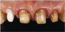 Hình 23: Sự biến đổi màu của cùi răng làm cho ta cần sử dụng một vật liệu tương đối mờ đục mà vẫn một hiệu ứng sáng đủ.