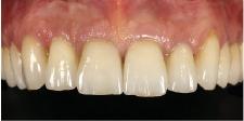 Hình 25: Các cùi răng đã được che giấu một cách hiệu quả dưới các mão răng mới (phương pháp cut-back) và độ sáng của răng đã tăng đáng kể.