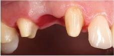 Hình 27: Sửa soạn răng cho một cầu ba đơn vị với thiết kế pontic ovate
