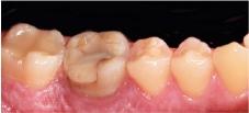 Hình 30: Răng dưới bên phải 6 đã được điều trị nội nha nhưng không thể cứu được vì các quá trình viêm tái phát.