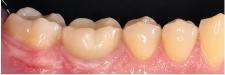 Hình 34: Kiểm tra sau 5 năm: kết quả là bằng chứng về sự thành công của quy trình trị liệu này.
