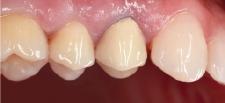 Hình 35: Răng đã được điều trị nội nha và phục hồi với mão PFM. Sau khi hư chân răng, nó không thể được bảo tồn nữa.